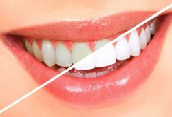 The Benefits You Can Enjoy with Teeth Whitening in Melbourne