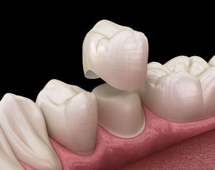 Porcelain Crowns and Veneers