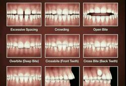 3 Signs You Might Require Braces