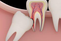 3 Signs Your Wisdom Teeth Are Impacted