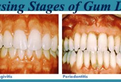 3 Common Causes of Bleeding Gums