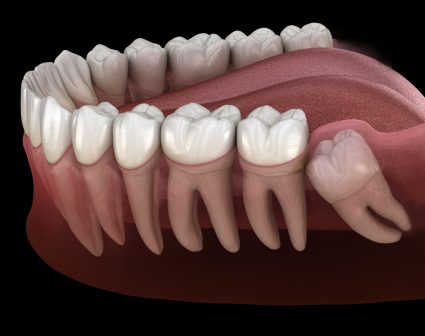 Impacted Wisdom teeth Surgery