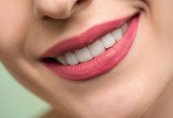 What You Need to Know About Professional vs At-Home Teeth Whitening